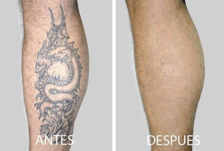 Como Borrar Un Tatuaje cómo borrar un tatuaje sin dolor