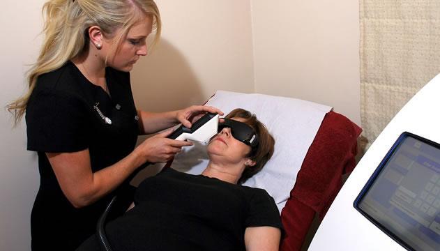Tratamiento con láser para eliminar las ojeras