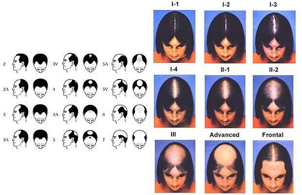 Los cabellos la máscara de la levadura