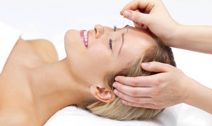 acupuntura en la cara