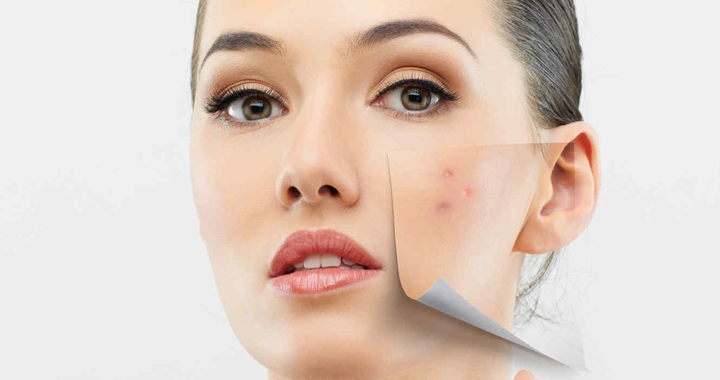 soluciones acne